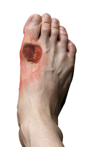 Diabetic Foot Infections Treatment Middlefield Foot Injury